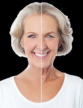 Old Women